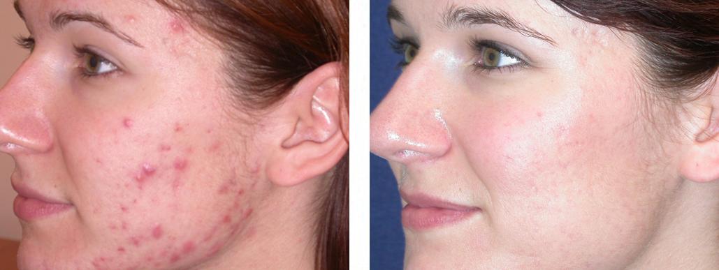 Косметология прыщи на лице