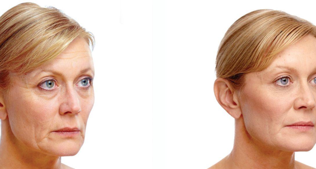 Botox® Cosmetic | Lakeshore Vein & Aesthetics Clinic