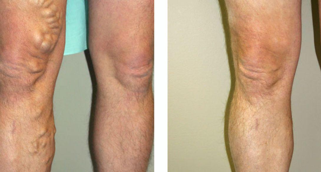 Il varicosity per trattenere gambe