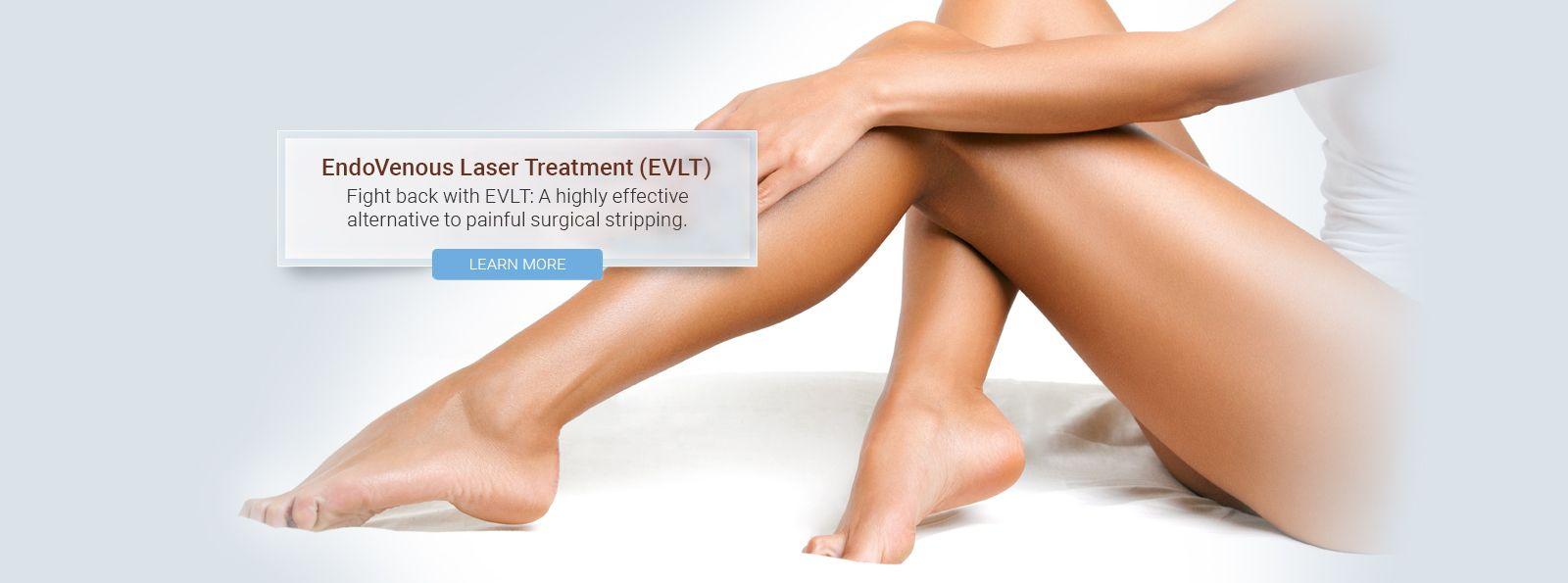 Endovenous Laser Treatment (EVLT)